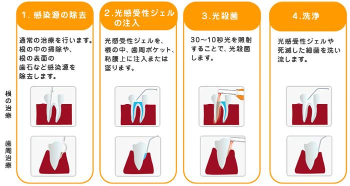 光殺菌(LAD)治療の手順
