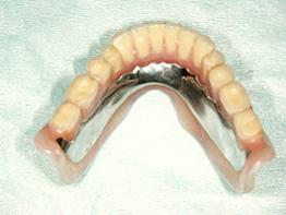 コンフォート総義歯(3年経過症例)