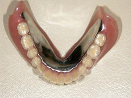 コーヌスクローネ義歯(22年経過症例)
