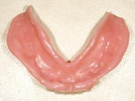 粘膜調整義歯(装着後6年症例)