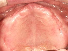 粘膜調整義歯03