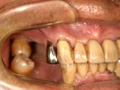 コーヌスクローネ義歯