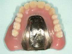 粘膜調整義歯