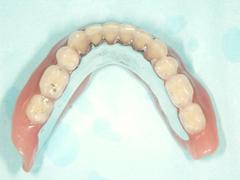 コンフォート総義歯03