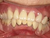 コーヌスクローネ義歯(すれ違い咬合)