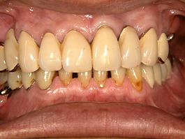 コーヌスクローネ義歯(20年経過症例)
