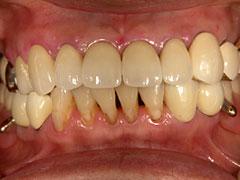 コーヌスクローネ義歯(健康上の理由によりインプラント不適応症例)