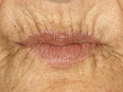 総義歯(30年経過症例)