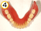 コンフォート総義歯
