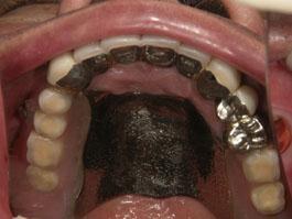 コーヌスクローネ義歯(16年経過症例)
