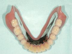 インプラントマグネット義歯