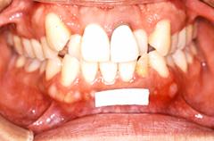 矯正歯科症例01