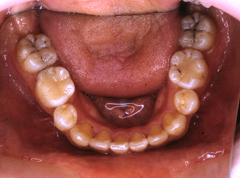矯正歯科症例02