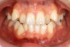 矯正歯科症例03