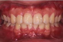 矯正歯科症例05