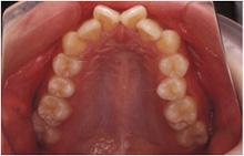 矯正歯科症例06