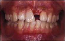 矯正歯科症例07